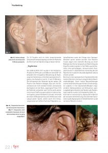 Gering invasives Facelifting Dr. Ben Gehl the aesthetics Wien